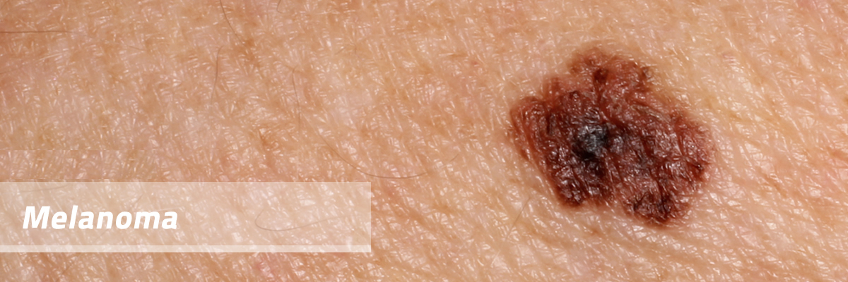 melanoma | dermatology center of canyon county, Human Body